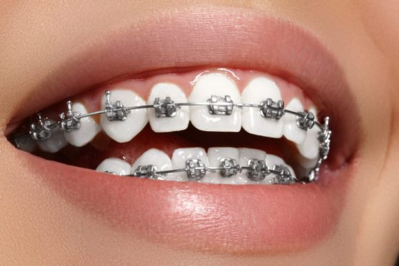 Dentist in Magee, MS | Orthodontic services